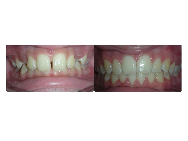 Astrid Perez intraoral center