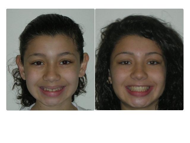 Astrid Perez smile