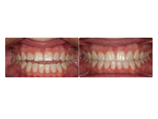 Chelsea Gray intraoral center