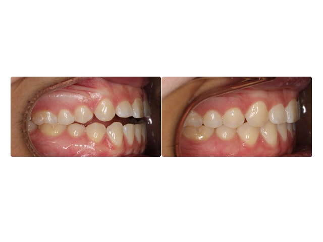 Chelsea Gray intraoral right