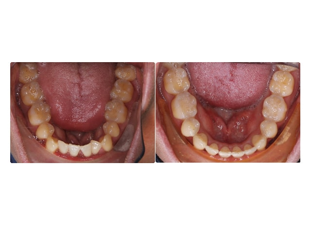Gabriel Gitman occlusal lower