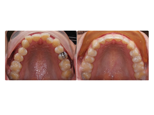 Gabriel Gitman occlusal upper