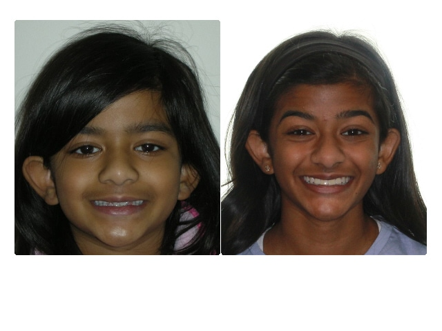 Phase I Treatment : 10 months  Karina's parents are so happy with the results of her orthodontic treatment. Karina always enjoyed coming to her appointments and being told she was doing everything correctly.
