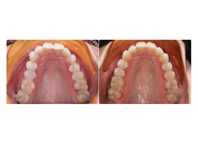 Kristina Angell occlusal upper