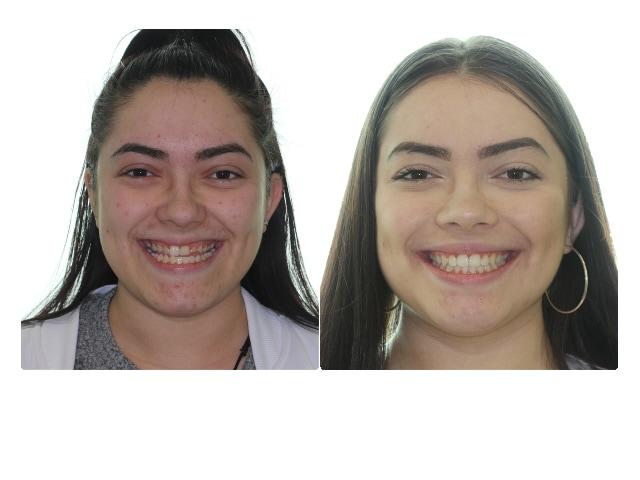 Vanessa Mazariegos smile