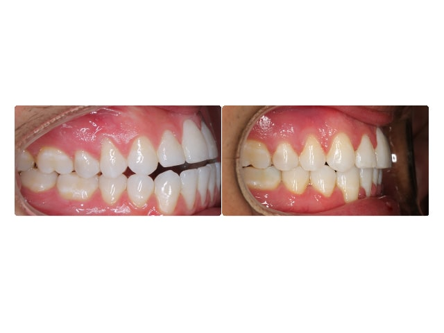 Yenovk Pashalian intraoral right